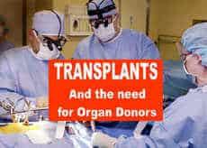 Transplant Birmingham