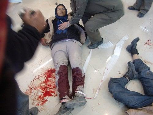 Wounded in Ashraf