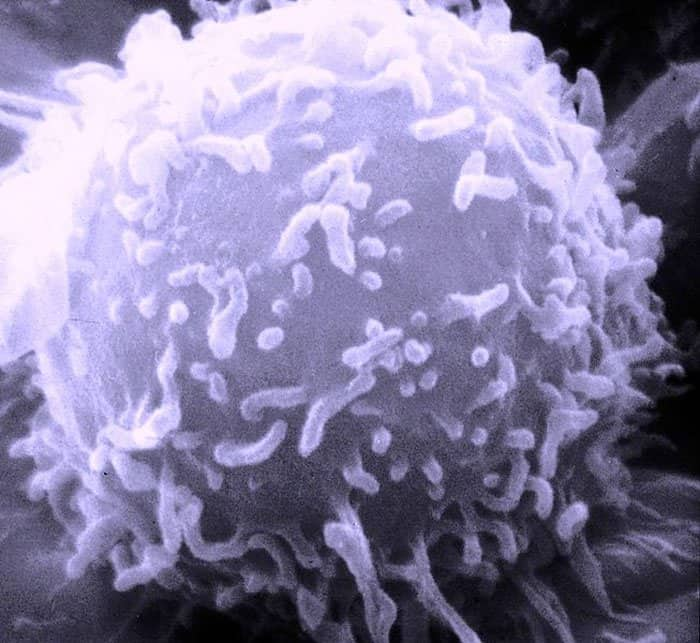 lymphocyte cancer cell