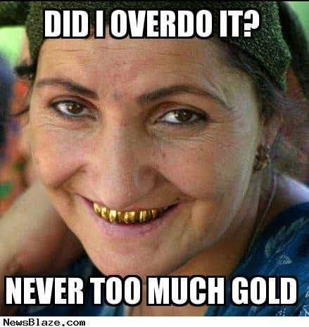 gold teeth smile