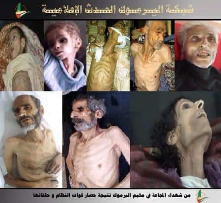 Starvation in Yarmouk