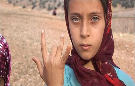 iran: this girl lost a finger.
