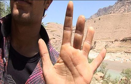 iran: man with missing fingers.