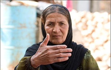 iran: woman with damaged finger.