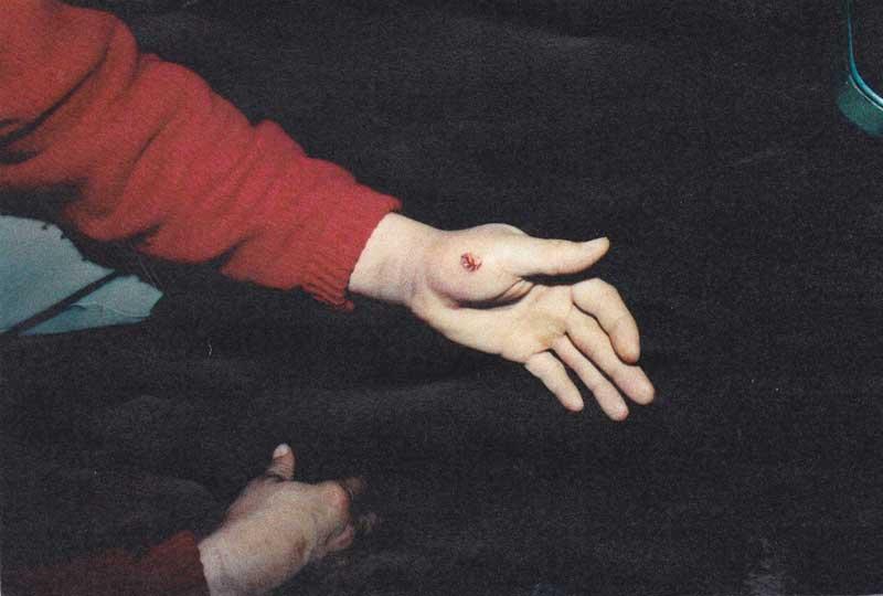 Prime suspect James Lane shows suspicious cut on left hand.